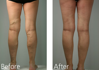 Leg Vein Treatment