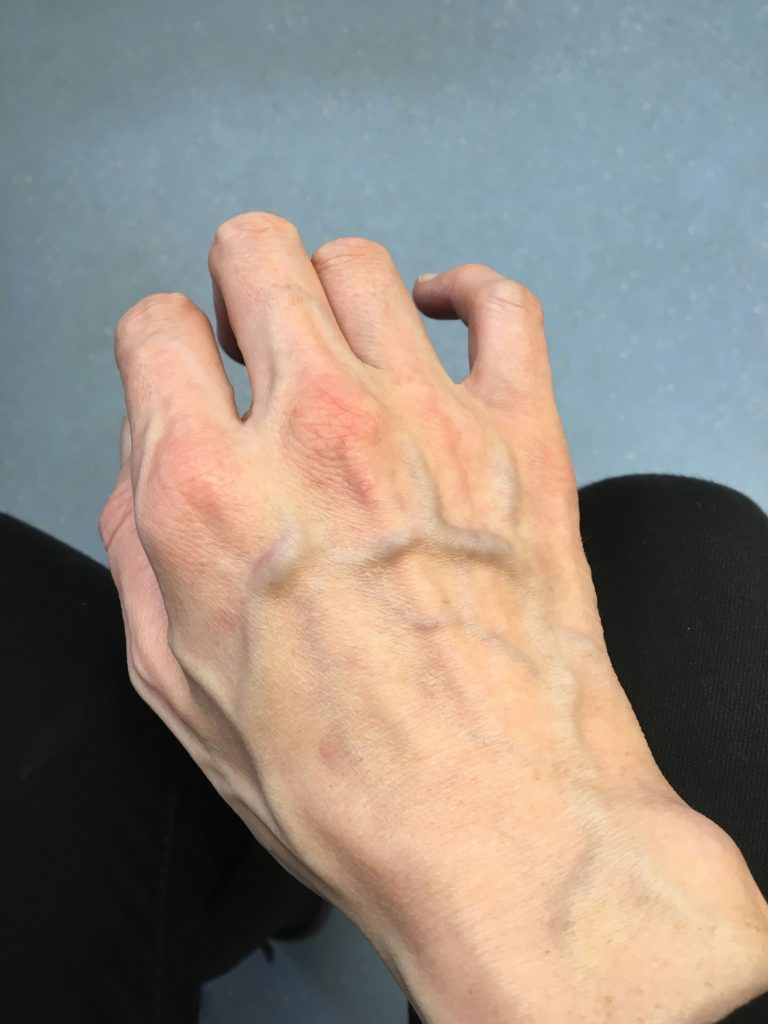 Hand Arm Veins Treatment