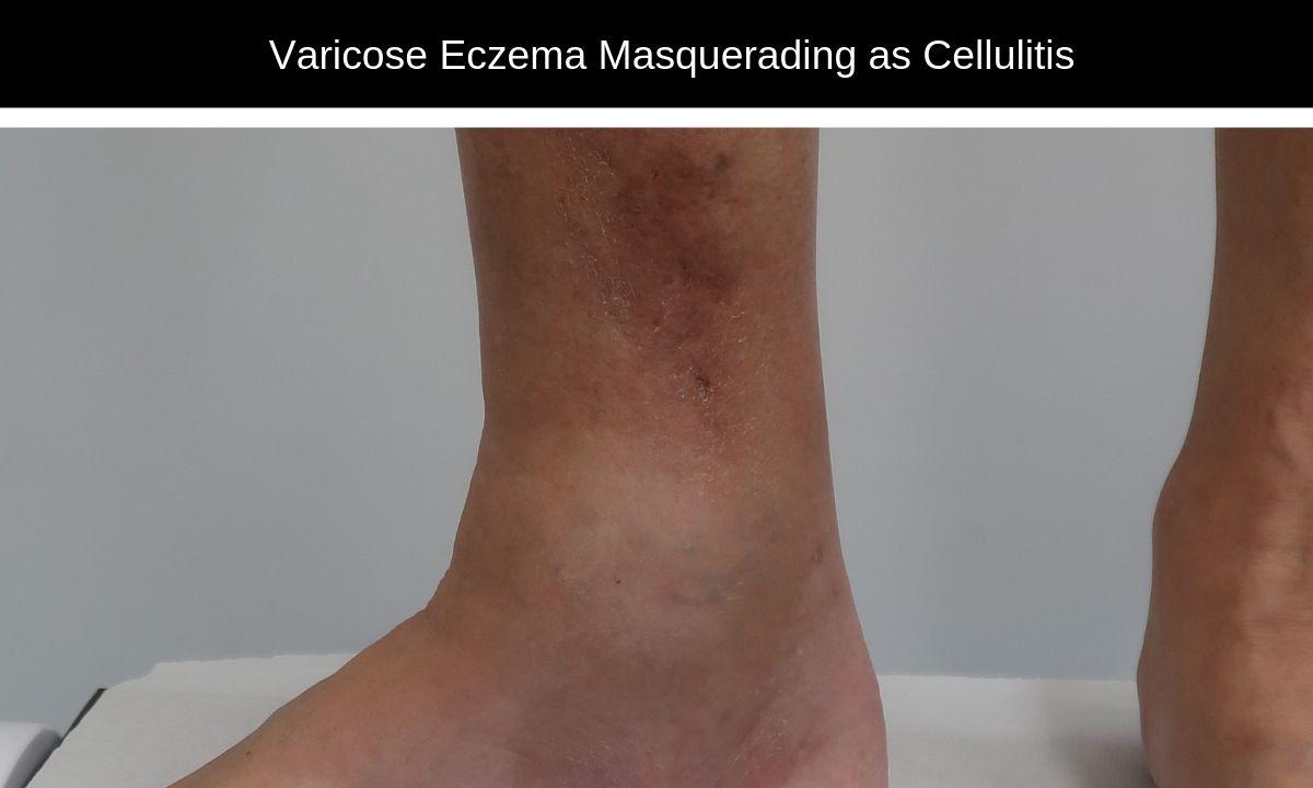 Varicose-Eczema