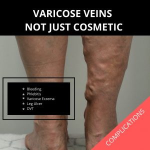 varicose veins are not just cosmetic