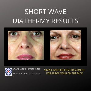 results of facial spider vein treatment