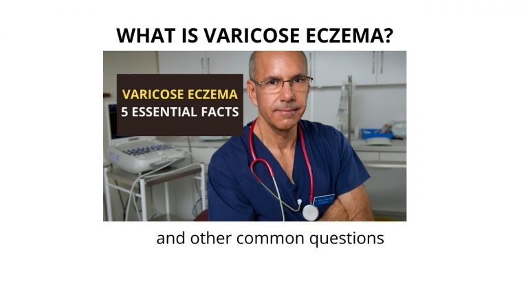 what does varicose eczema look like