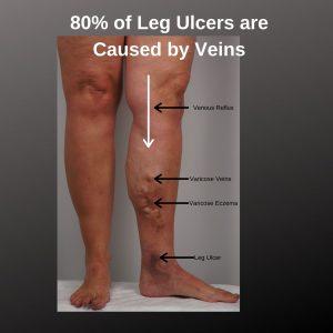 What do leg ulcers look like