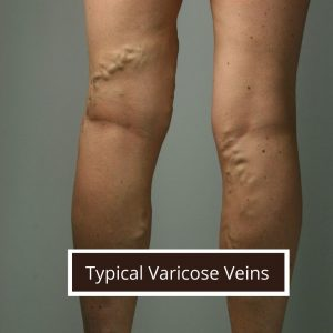 typical-varicose-veins