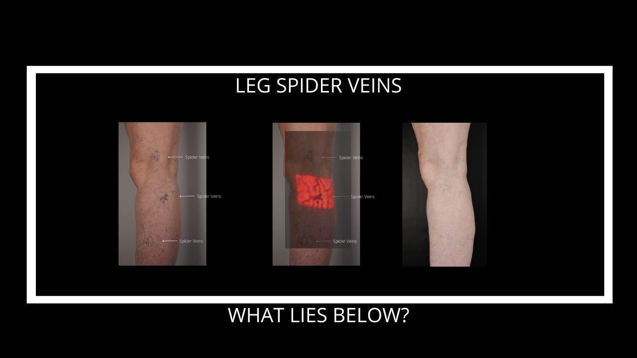 Leg-spider-veins-what-lies-below