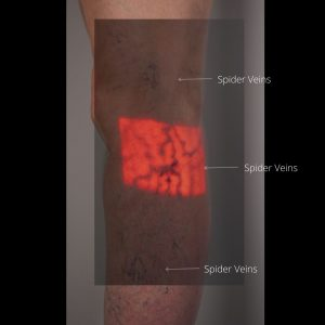 Infra-red-imaging of leg veins