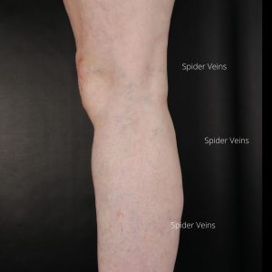 Leg-spider-veins-after-microsclerotherapy