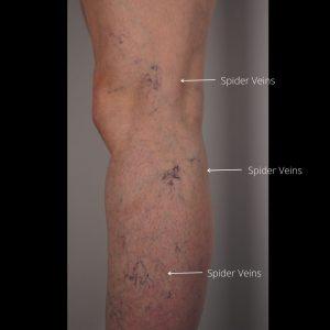 Leg-spider-veins