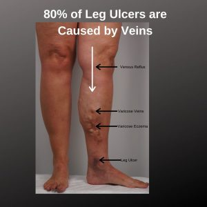 venous-leg-ulcer