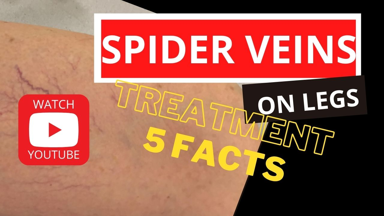 5-important-facts-about-leg-spider-veins