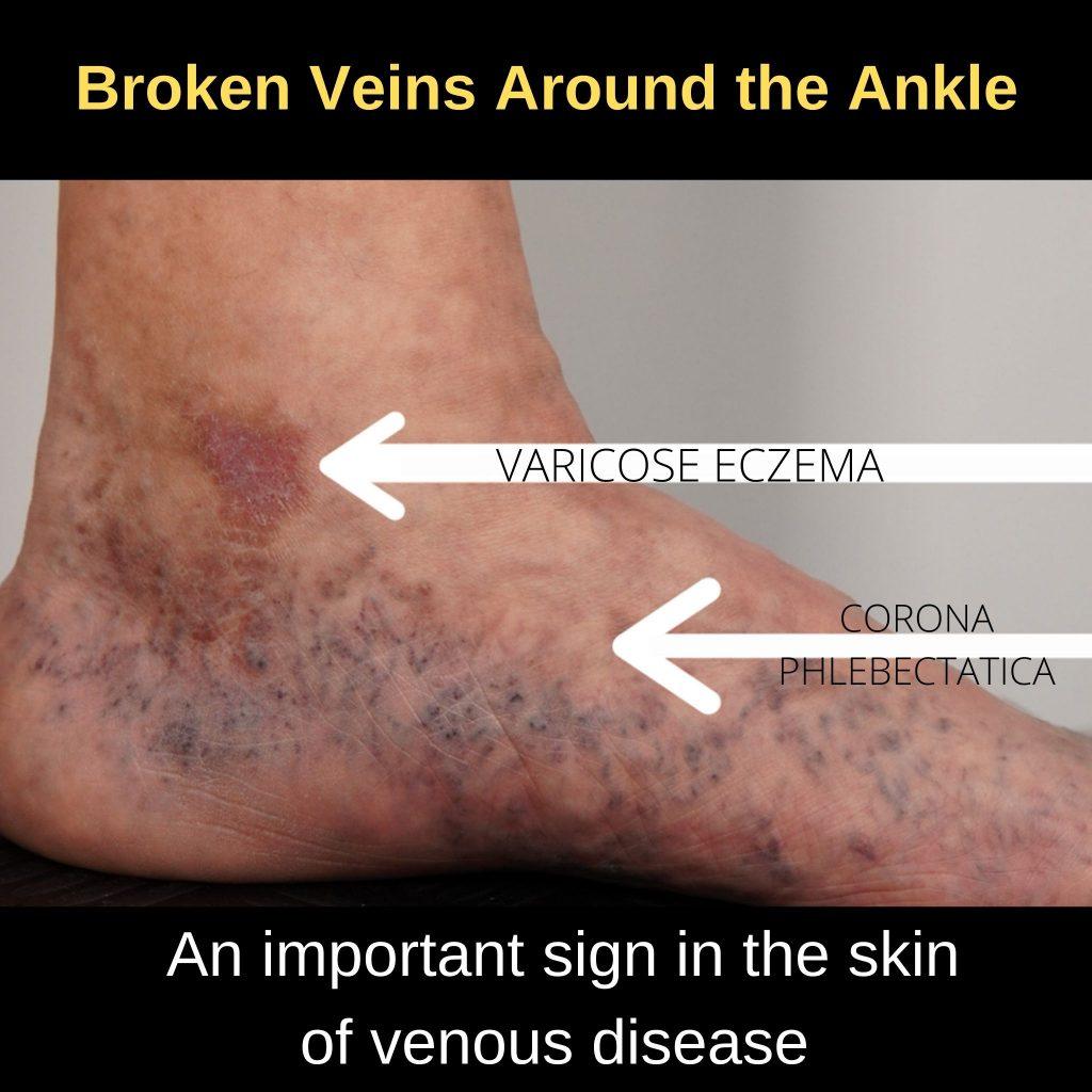 corona-phlebectatica-ankle-flare