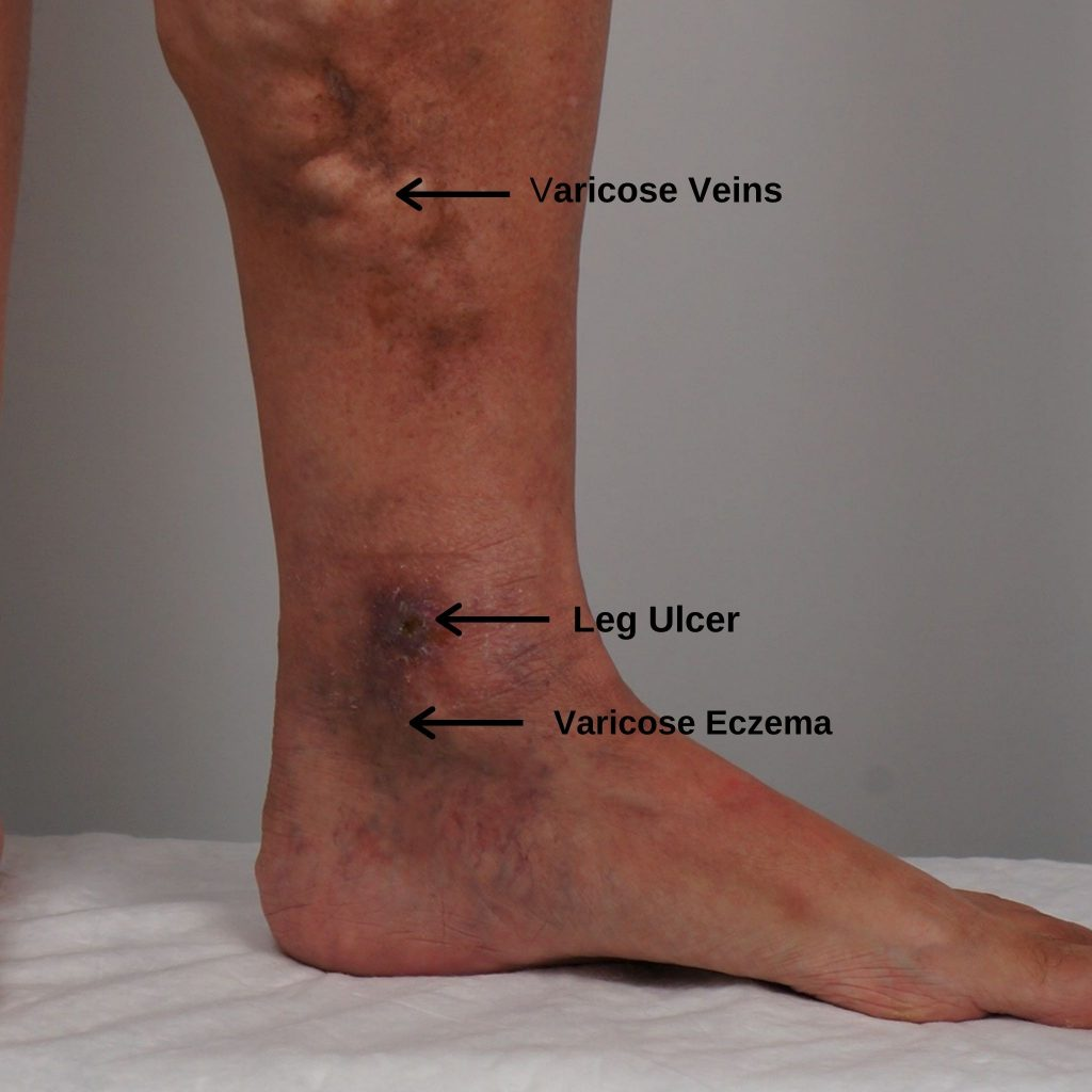 what does varicose eczema look like with leg ulcer