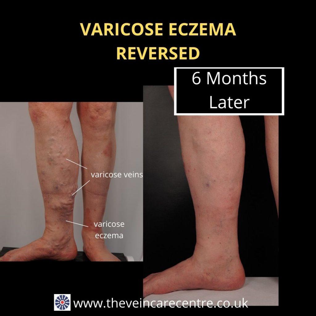 cure-varicose-eczema