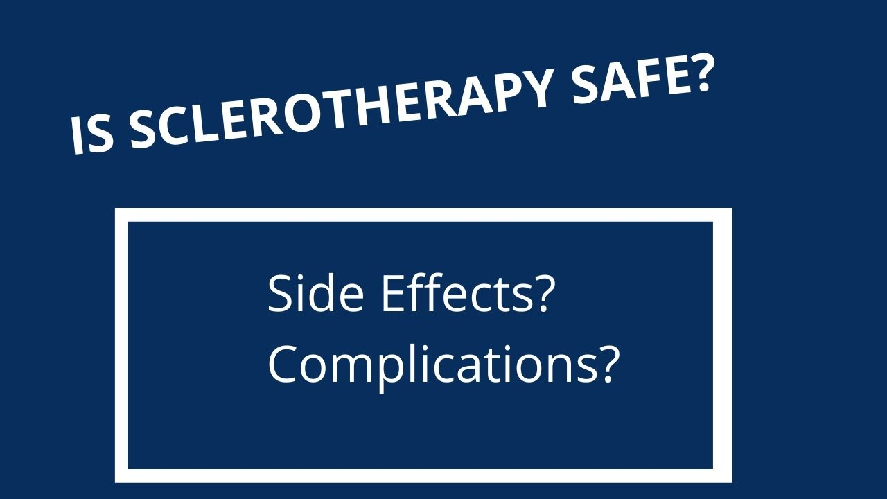 is-sclerotherapy-safe