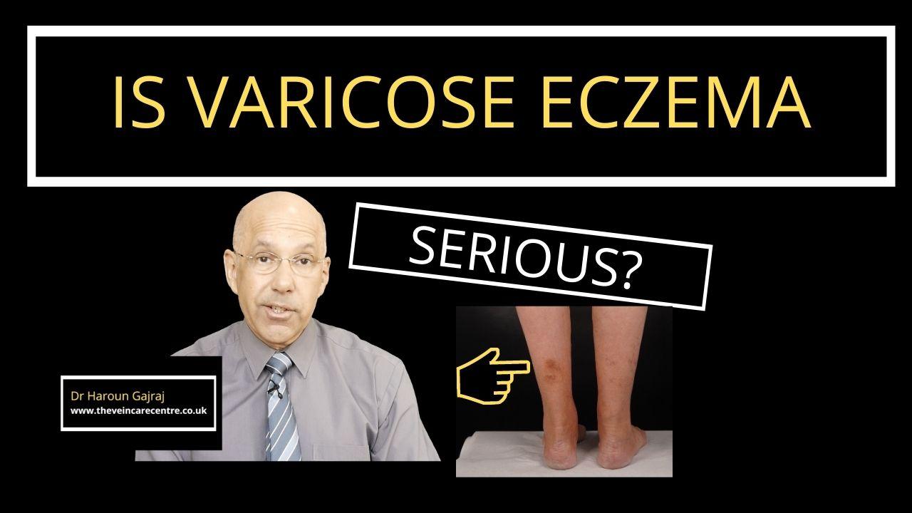 is-varicose-eczema-serious