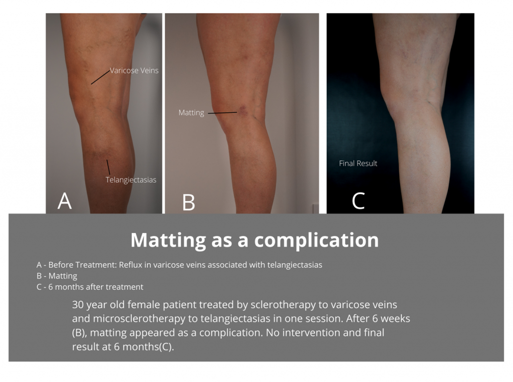 Matting-Complication-after-sclerotherapy