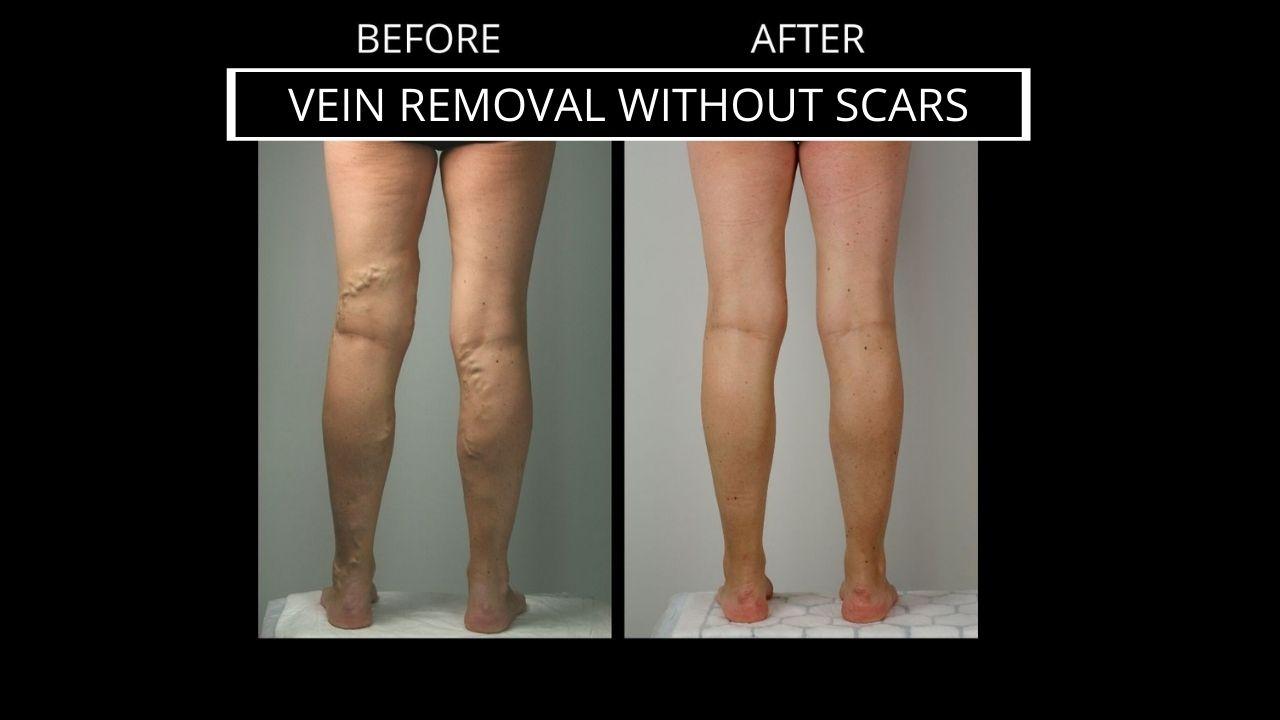 Vein-removal-no-surgery-no-scars