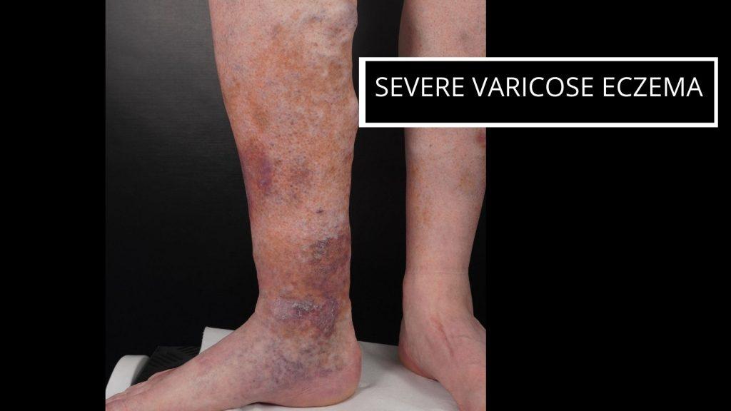 severe-varicose-eczema